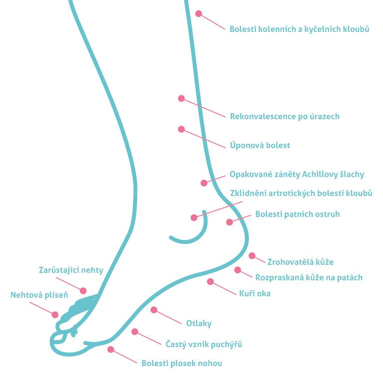 Bolesti nohy